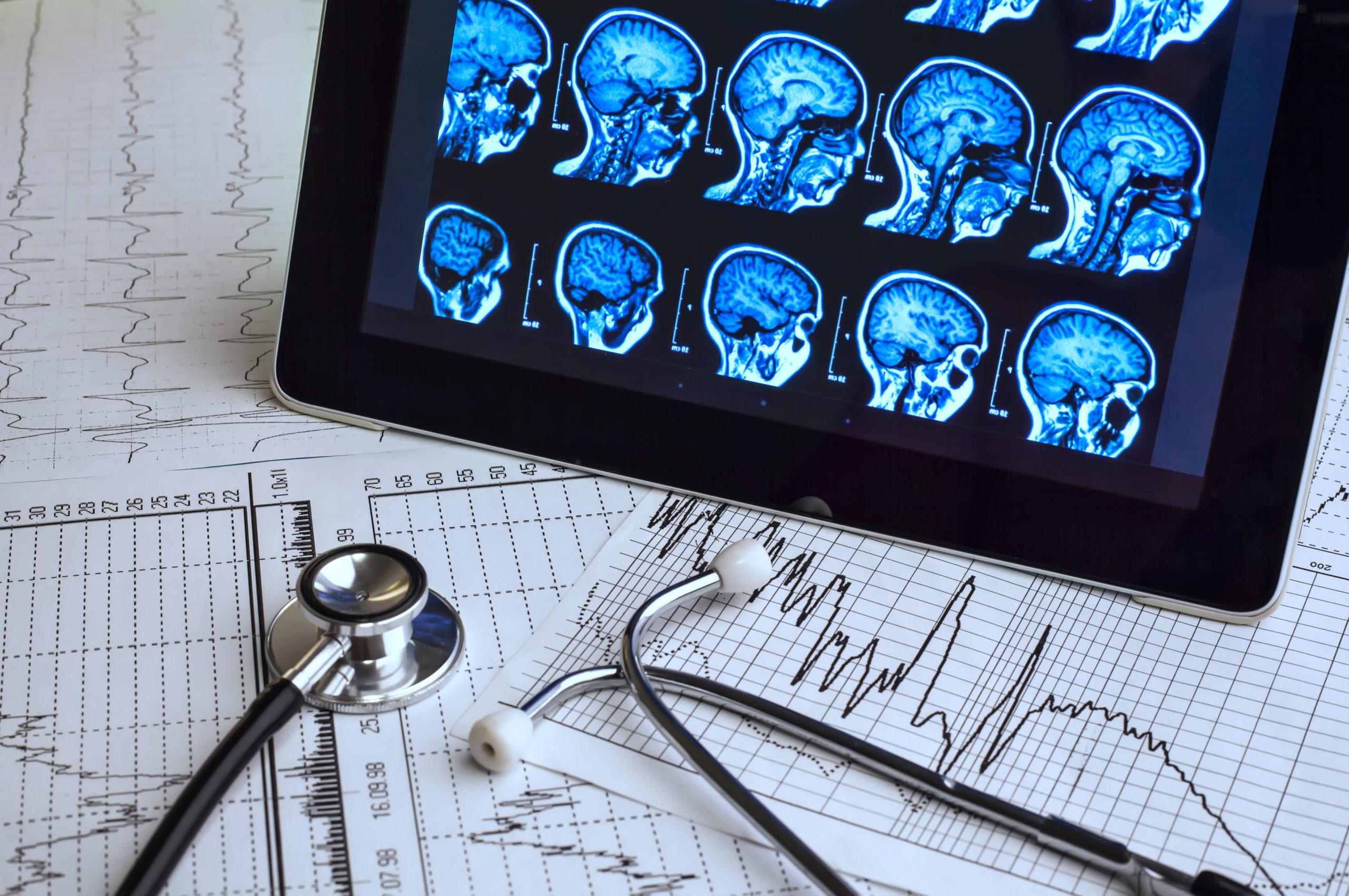 Using CBD To Treat Epilepsy